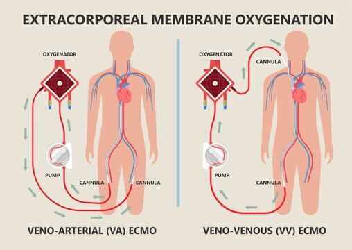Extracorporeal membrane oxygenation ECMO a life support system for Respiratory failure patient system illness damage Infection perfusionist Ards transplant myocarditis embolism