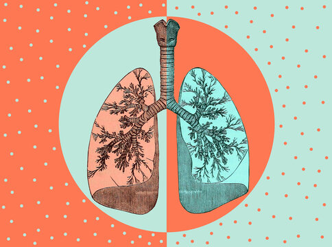 Mixed Media Collage with Lungs