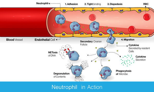 Migration of Neutrophils during inflammation through the blood vessel : diapedesis and adhesion vector design