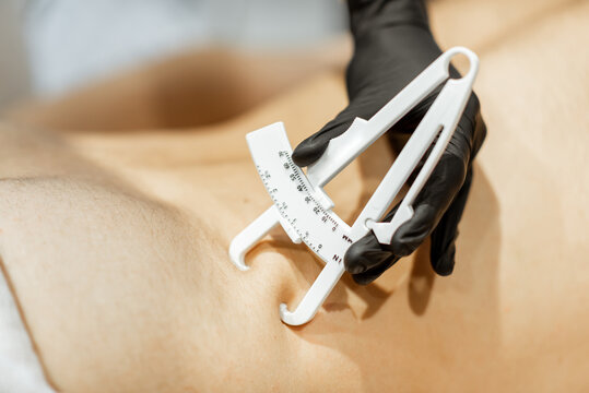Determining the amount of sebum on male abdomen using medical caliper, close-up