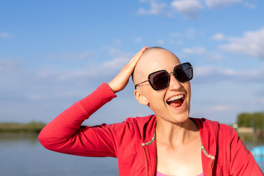 Happy young caucasian bald confident hipster woman shoving shaved head enjoying life after surviving breast cancer. Portrait of beautiful hairless girl smiling walking near lake at bright sunny day