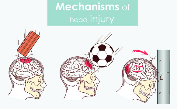 Mechanisms of head injury vector illustration