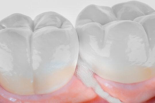 dental floss