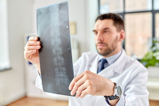 healthcare, medicine and people concept - male doctor with x-ray of spine at hospital