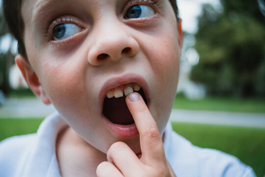 Little boy with loose tooth.