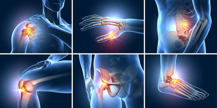 Painful joints, medical 3D illustration
