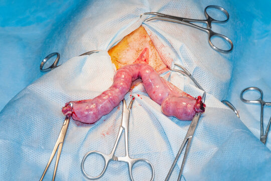 Pyometra uterus in domestic dog. Process surgery. Sterile surgical field.