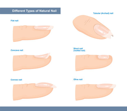 Different Types of Fingernail. Normal, Short, Roofed, Tubular, Arched, Flat, Convex and Concave Nails. Nail Extension Guide. Vector Illustration