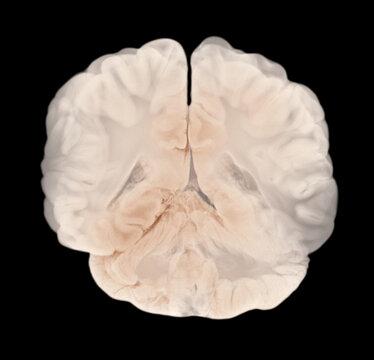 Vertical Section Through Cerebral Hemispheres. Human Brain Anatomy