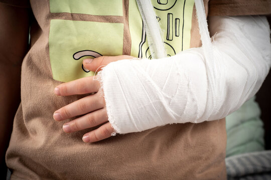 little boy lies on the bed with a fractured limb. a child's arm is broken. fracture injury. plaster cast on the arm