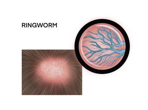 Medical illustration of the ringworm