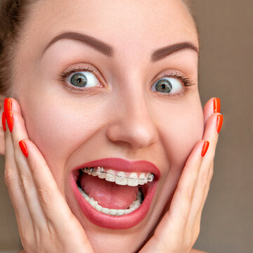 Closeup Braces on Teeth. Woman Smile with Orthodontic Braces.