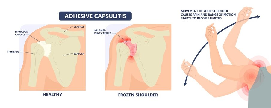 Frozen shoulder adhesive capsulitis surgery stiff crush ribs bone lift athletes arm rupture symptom freezing stiffness rheumatoid arthritis