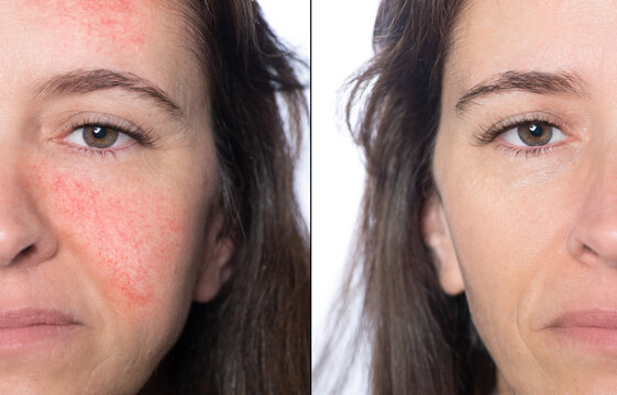 The concept of rosacea and couperose before and after treatment