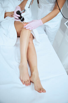 Cosmetologist treating the spider veins on the female legs