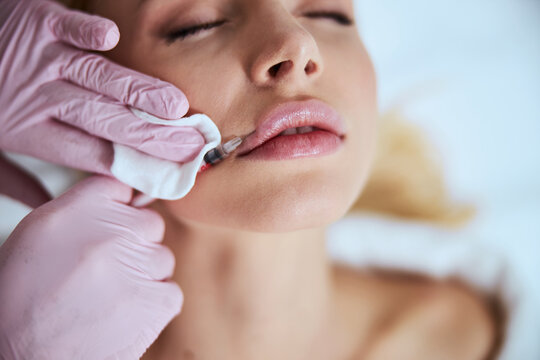 Female patient undergoing the lip enhancement procedure