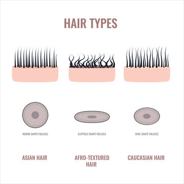 Straight, wavy and curly hair types classification set. Skin and follicles cross-section diagram. Human hair growth style chart. Round, oval, elliptical shapes of hair fiber. Vector illustration.