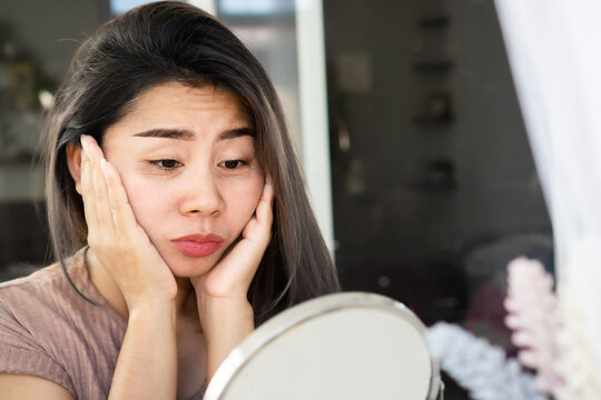 Asian woman having problem with eyes bags , dark circles, wrinkle and crow's feet on her face skin