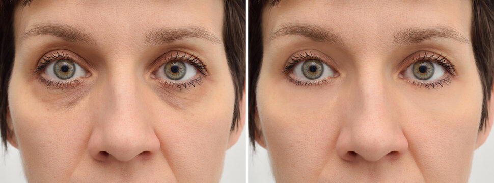 Female eye bags before and after cosmetic treatment or plastic procedure, blepharoplasty. Close-up.
