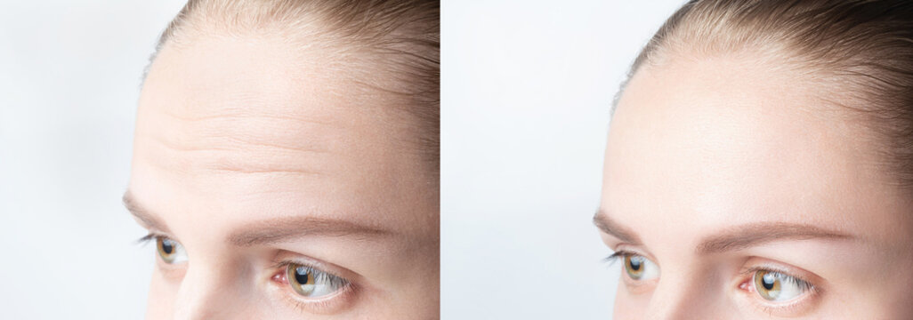 Forehead wrinkles before and after mefotherapy injection, treatment, surgery. Womans face close up