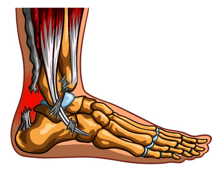Vector medical illustration of Achilles tendon rupture syndrome.