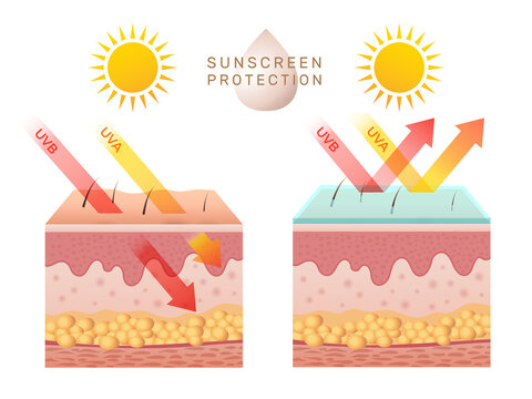 Uv skin protection. Damaged human skin peels before and after sun protection body adipose layers epidermis recent vector infographic template. Uv sunburn, ultraviolet to body damage illustration