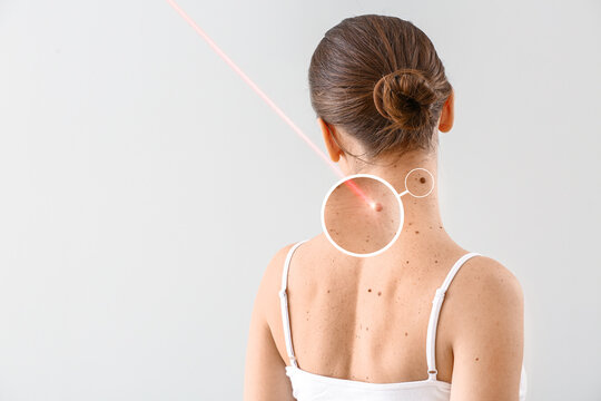Young woman undergoing procedure of nevus removal by laser on light background