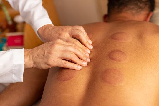 Terapeuta fazendo massagem nas costas de paciente com marcas de terapia com ventosa.