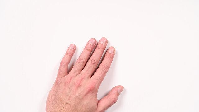Second degree burns on the finger