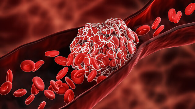 Blood Clot or thrombus blocking the red blood cells stream within an artery or a vein 3D rendering illustration. Thrombosis, cardiovascular system, medicine, biology, health, pathology concepts.
