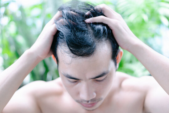 Young man serious hair loss problem for health care medical and shampoo product with green nature, selective focus