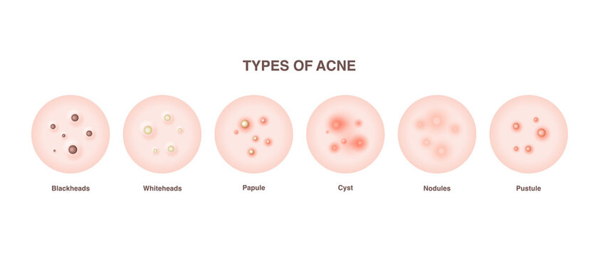 Acne types, skin pimples blackheads and face comedones. Types of acne diagram illustration vector