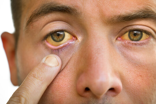 Young man with yellowish eyes and skin, liver disease. Symptoms of high bilirubin. Jaundice, hepatosis, hepatitis, cirrhosis, liver failure. Alcohol and nicotine harmful effects