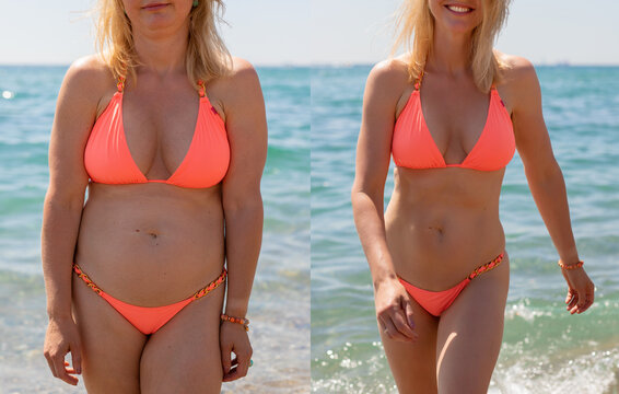 Candid photos of a woman before and after weight loss