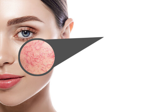 Magnifying glass showing couperose on face skin. Woman showing problems couperose-prone sensitive skin. Rosacea