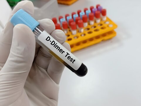 Lab Technologist holds Blood samples for D Dimer test. Corona patient monitoring test in ICU. Close view. Deep venous thrombosis. Iintra vascular coagulation. Aortic dissection.
