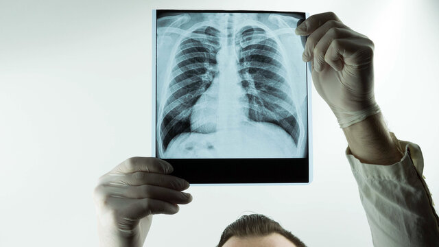 A doctor at the clinic examines an x-ray of the lungs, pneumonia with a complication on an x-ray, the doctor looks at an x-ray of the lungs, a respiratory disease.