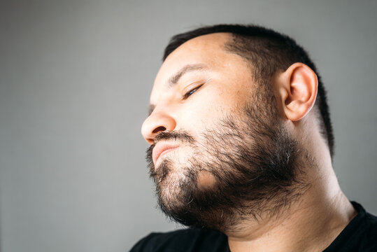 Man with alopecia area in the beard