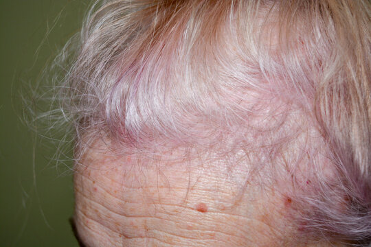 Alopecia in patient with system lupus erythematosus. Diffuse hair loss