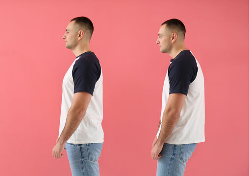 Man with proper and bad posture on color background