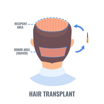Male alopecia treatment with FUE hair transplantation method. Follicular unit extraction diagram of donor site and recipient area. Medical infographics. Vector illustration.