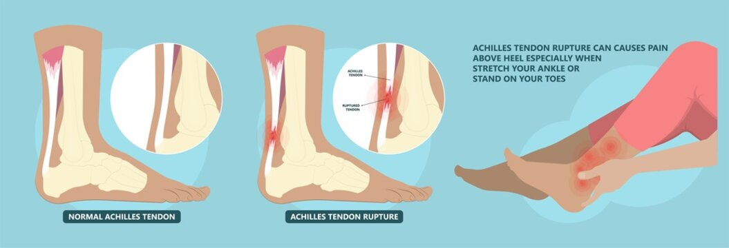Achilles tendon rupture injury Feet calf test range of motion slight ache problem limb Thompson Simmonds