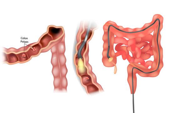 Removal polyps of the Colon. Colonoscopy medical illustration