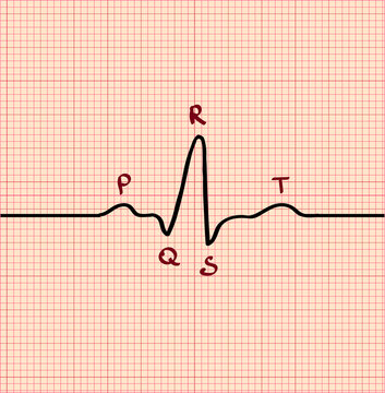 Electrocardiography sinus rhythm. Normal sinus rhythm. Sinus wave. Sinus rhythm. ECG, EKG, PQRST.