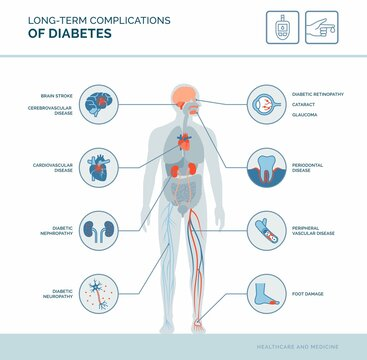 Long-term complications of diabetes
