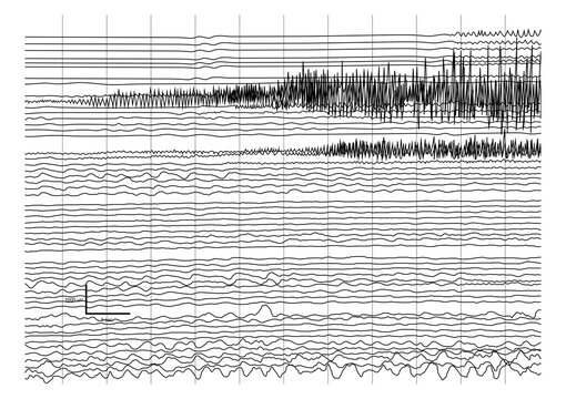 Vector Illustration of ictal EEG recording during seizure.