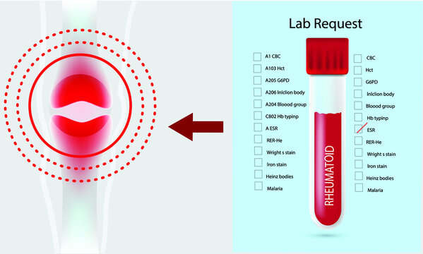 Illustration of blood test tube for Rheumatoid arthritis.