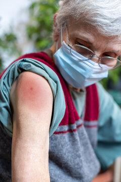 vaccine irritation on elderly woman's arm