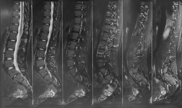 X- ray MRI of lumbosacral spine (L-S spine) case of low back pain. Normal x-ray MRI lumbosacral spine case of low back pain , MRI LS-spines.