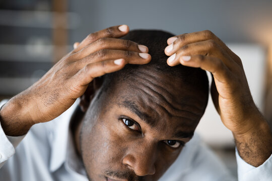 Young African Men Hair Loss
